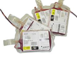 Omit - Transfusions
