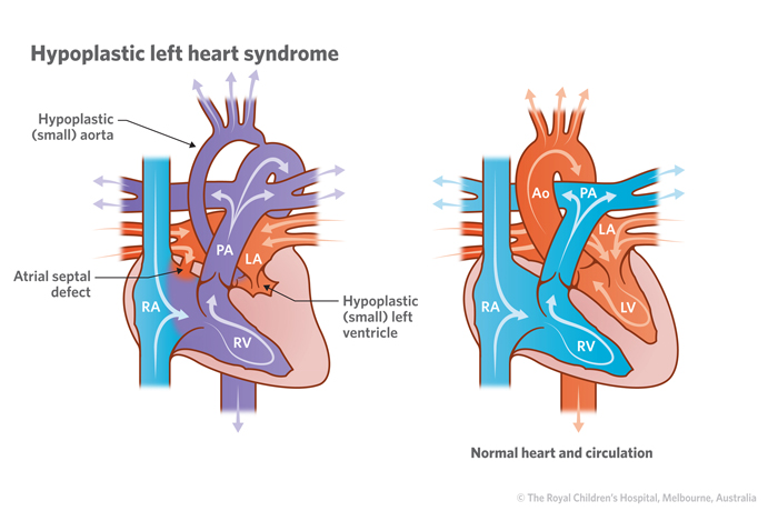 10a_Hypoplastic_left_heart_syndrome