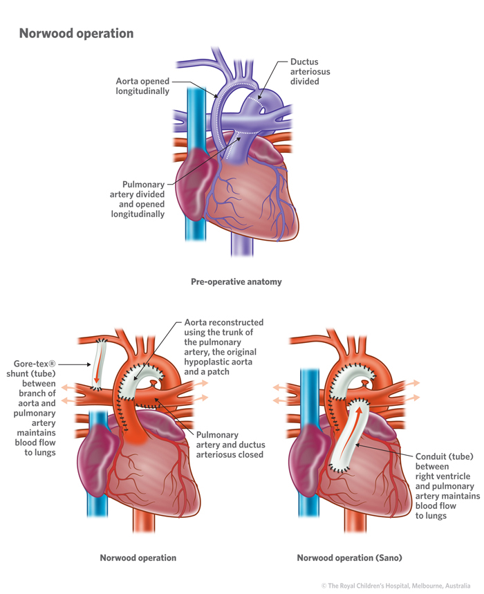 10b_Hypoplastic_left_heart_syndrome