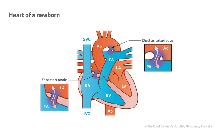 Cardiology Normal Heart