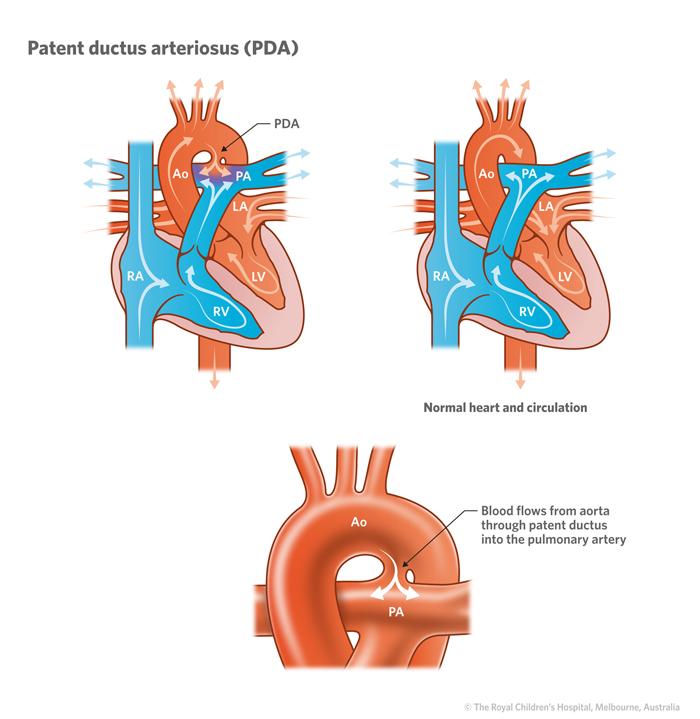 Reserve Ductus arteriosus patent adult