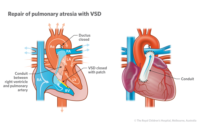 15b_Pulmonary_atresia_with_VSD