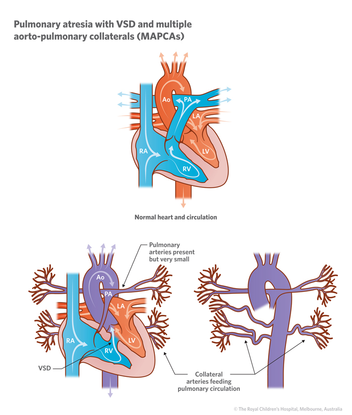 15c_Pulmonary_atresia_with_VSD