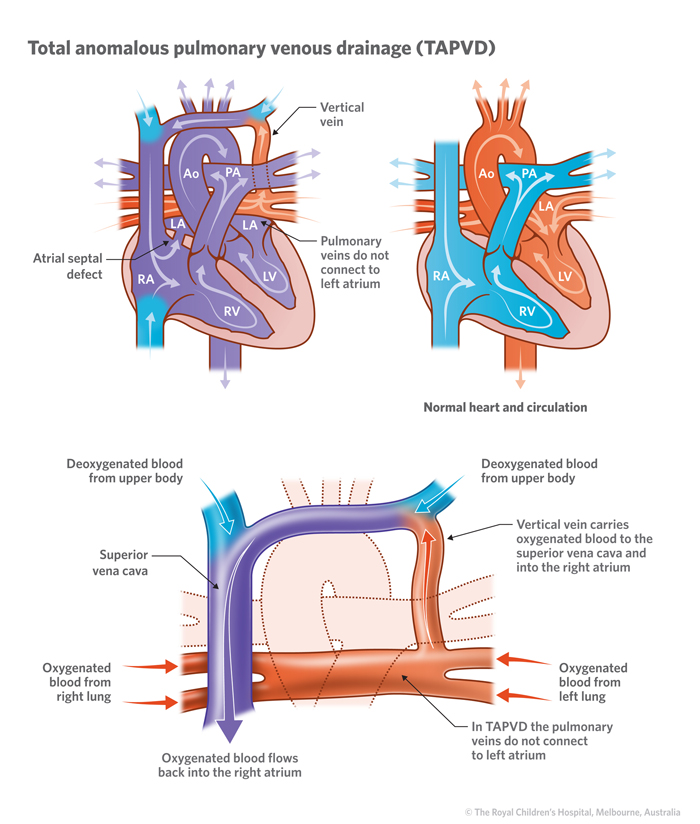 17a_Total_anomalous_pulmonary_venous_drainage
