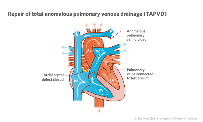 17b_Total_anomalous_pulmonary_venous_drainage
