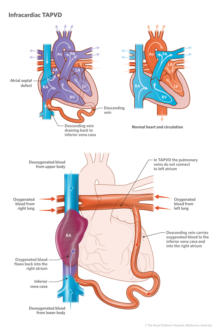 17c_Total_anomalous_pulmonary_venous_drainage