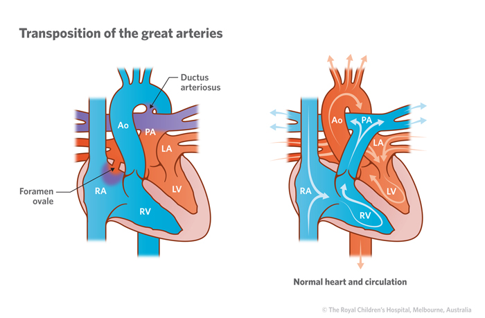 18a_Transposition_of_the_great_arteries