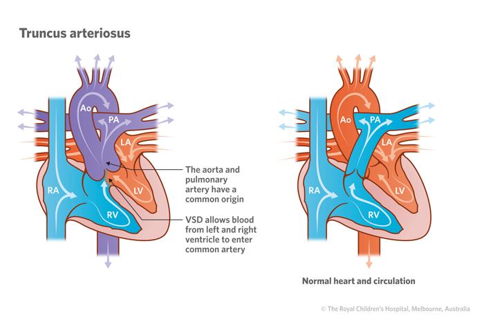 cardiology   truncus arteriosus