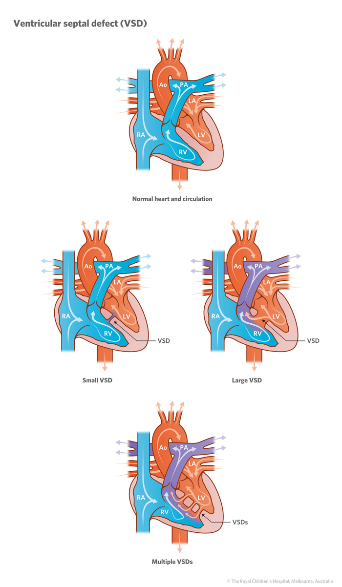 21a_Ventricular_septal defect_VSD