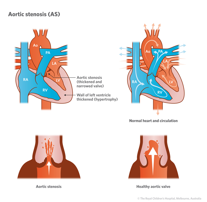 2a_Aortic_stenosis_AS