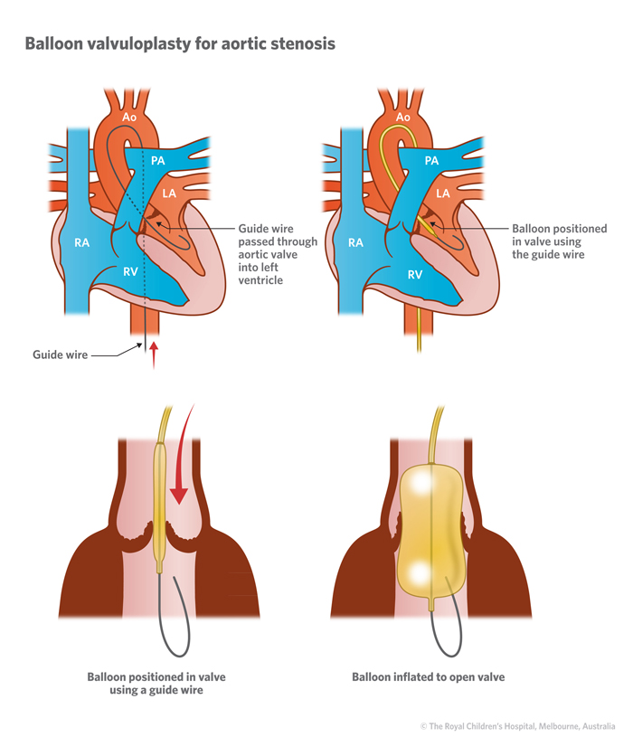 Aortic Stenosis In Children: Cardiology : Aortic Stenosis