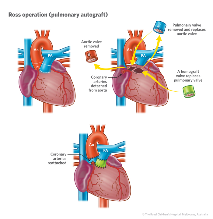 Aortic Stenosis In Children: Cardiology : Aortic Incompetence And Ross Procedure