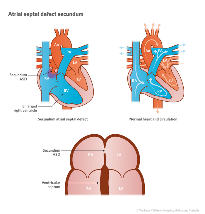 3a1_Atrial_septal_defect_ASD