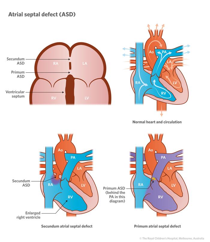 Cardiology : Atrial Septal Defect