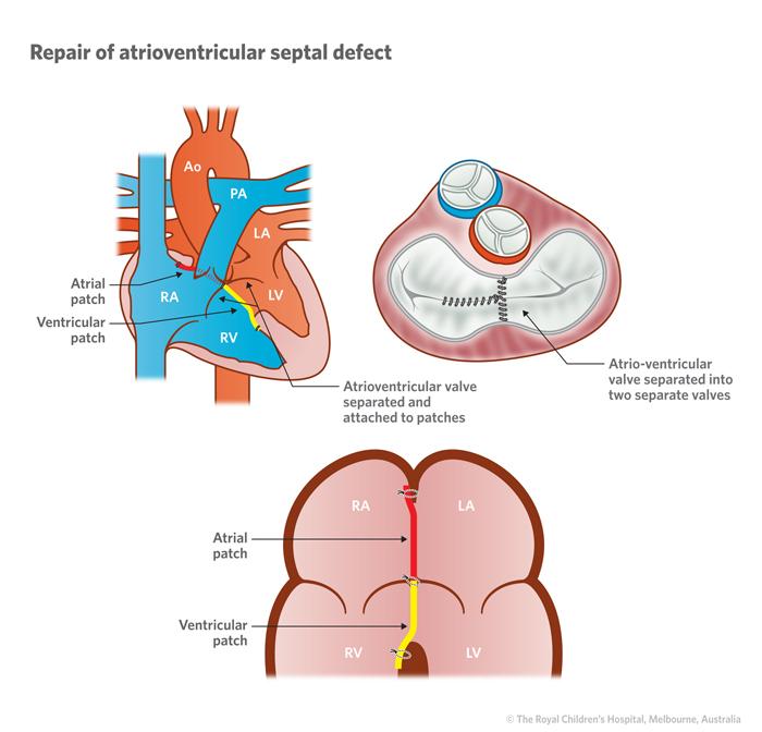 Cardiology Complete Atrio Ventricular Av Septal Defect