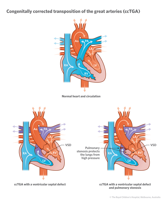 cardiology congenitally corrected transposition of the