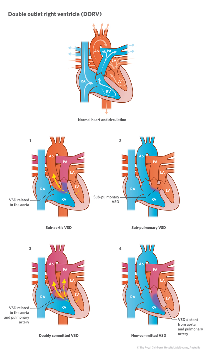 cardiology double outlet right ventricle 8a double outlet right ventricle dorv