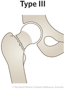 ED Section 1 FEMORAL NECK FRACTURE Type 3