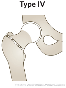 ED Section 1 FEMORAL NECK FRACTURE Type 4