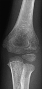 Fracture_Lateral condyle_Figure 2_1101127-Lateral_Condyle_AP.jpg