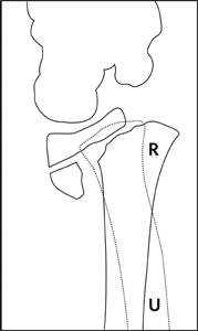 Fracture_Distal radius physeal_Figure 3_1370609-Salter-Harris2_lateral_drawing.jpg