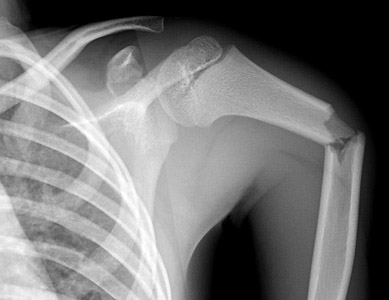 Clinical Practice Guidelines : Humeral shaft fractures - Emergency