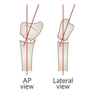 /uploadedImages/Main/Content/clinicalguide/Fracture-Distal-radial-metaphyseal-ED_Section-7_ACCEPTABLE-ANGULATION-20-degrees.jpg