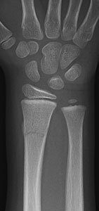 Fracture-Distal-radial-metaphyseal-Fig-2_1112344_complete-fracture-with-buckle_distal-radius_AP.jpg