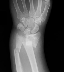 Clinical Practice Guidelines : Distal radius and or ulna ...