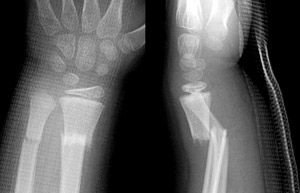 Fracture-Distal-radial-metaphyseal-Fig-4_1219783-Bayonet-apposition.jpg