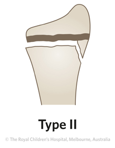Fracture-Distal-radial-physeal-ED_Section-1-and-2_SALTER-HARRIS-RADIUS-2.jpg