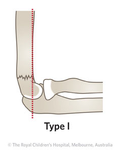 Clinical Practice Guidelines : Supracondylar fracture of the