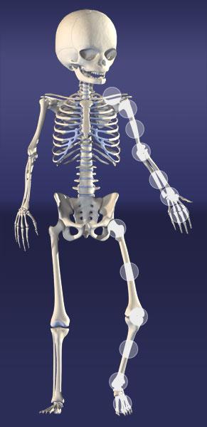 FractureGuidlineSkeleton