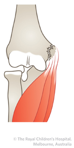 Medial_epicondyle_ED_Section1_lessthan5mm.JPG