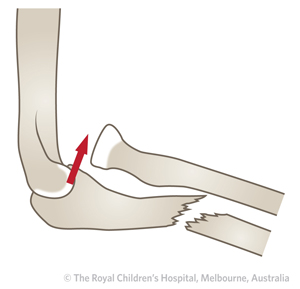 Clinical Practice Guidelines : Monteggia fracture ...