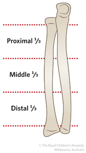 clinical practice guidelines radius ulna shaft diaphysis