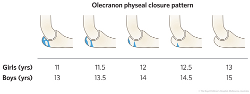 ED_Section 6_ Olecranon PHYSEAL CLOSURE.jpg