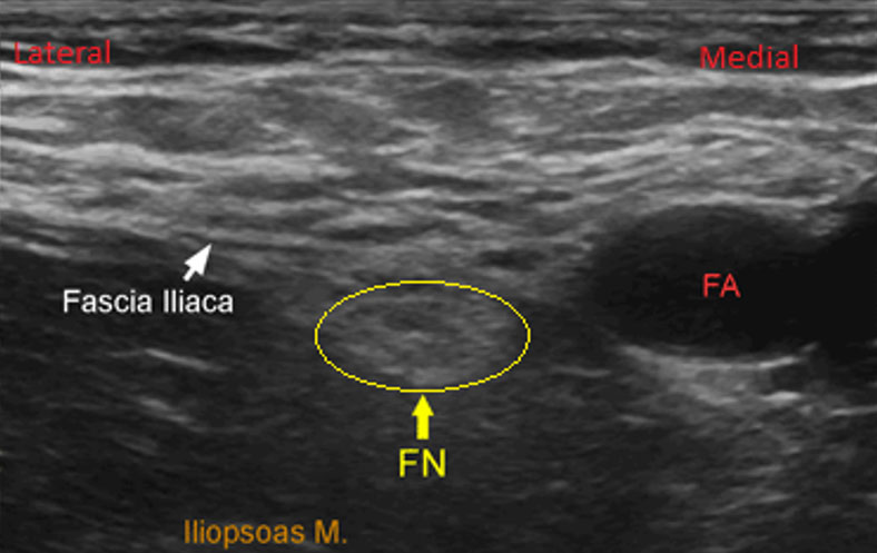 Clinical Practice Guidelines Femoral Nerve Block