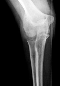 Radialneck_figure_7_elbow_displaced__right_ap.jpg