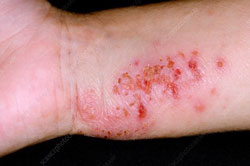 Eczema bacterial infection