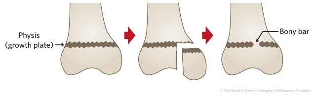 Fracture Education Physeal Growth Plate Injuries