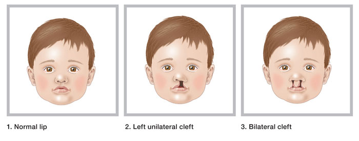 Cleft-lip-and-palate-1.jpg