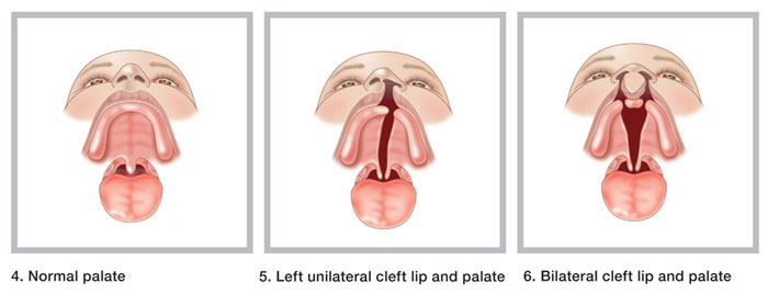 essays on cleft lip and palate Methodology: fifty-six consecutive patients aged 16 years and below who had surgical repair of cleft lip or palate under general anesthesia during the study period were involved in this prospective, observational study routine preoperative review and anesthetic management were not altered.