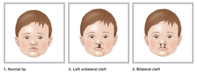 Cleft_lip_cleft_palate