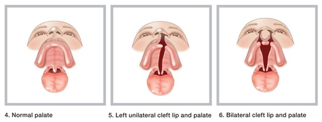 Kids Health Info : Cleft lip and cleft palate