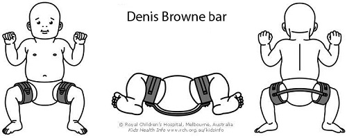 Denis_Browne_bar
