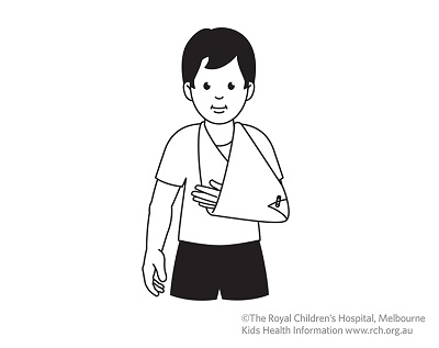 Fracture care: arm in sling