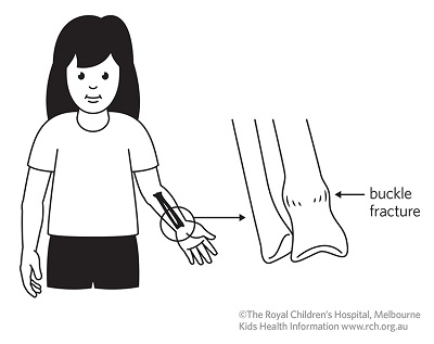 Fracture care: buckle fracture