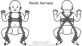 Pavlik harness for DDH