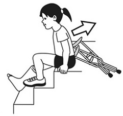 Crutches - unsafe using crutches on stairs